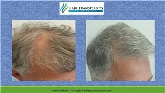 Hair Transplant Surgery before and after photo Weston Florida.
