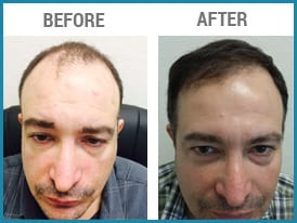 Hair Transplant Repair