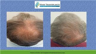 Hair Transplant Surgery before and after photo Olrando Florida.