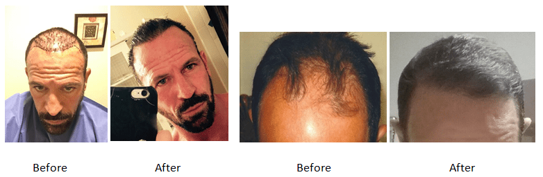 Men's Hair Transplant Evidence by Hair Transplants of Florida