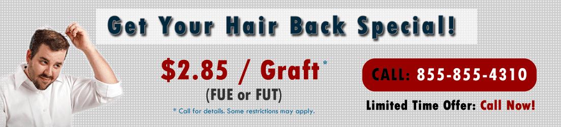 hair transplants orlando cheap