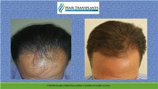 Hair Transplant before and after photo Orlando Florida.