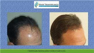 Hair Transplant before and after photo Fort Meyers Florida.