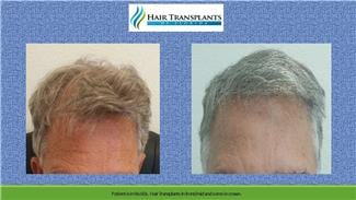 Hair Transplants Surgery before and after photo Tampa Florida.
