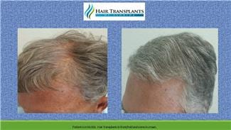 Hair Retoration Surgery before and after photo Tampa Florida.