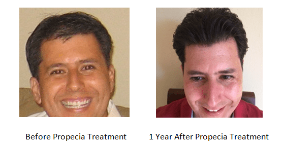 Medical hair replacement therapy success story at Hair Transplants of Florida