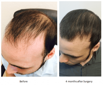 tampa hair transplants before after photos
