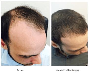 Tampa hair transplant photos