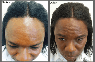 Surgical Hair Replacement works for African American Hair when done by the clinical experts at Hair Transplants of Florida
