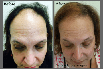 Marta Before and After Results Women's Hair Replacement at Hair Transplants of Florida