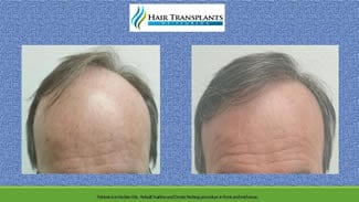 Hair Transplant before and after photo Tampa Florida.