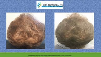 Hair Transplant before and after photo.