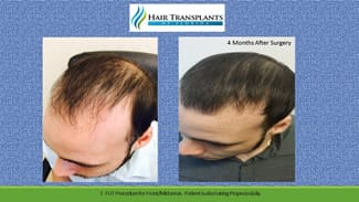Weston Hair Transplant before and after photo.