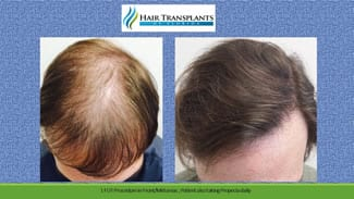 Tampa Hair Transplant before and after photo.