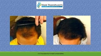 Sarasota Hair Transplant before and after photo.
