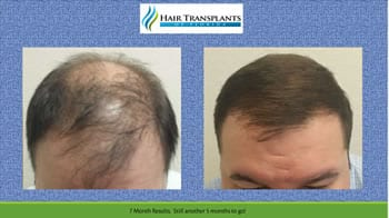 hair transplants Orlando before after photo