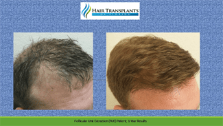 Orlando Hair Transplant before and after photo.