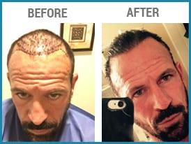 FUE hair transplants