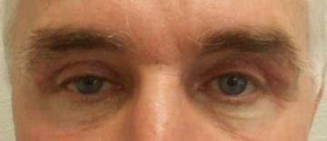 Eyebrow Transplant Before After Photo Naples FL