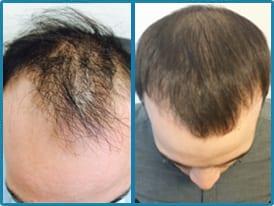 orlando hair transplant results
