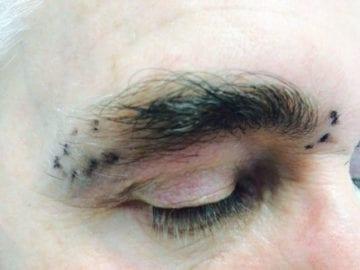 Eyebrow Hair Transplant Before photo