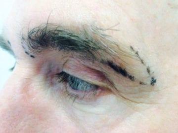 Naples Eyebrow Transplants