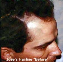 Before hair transplant photo