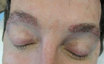 Eyebrow Transplant Surgery Photo Naples FL