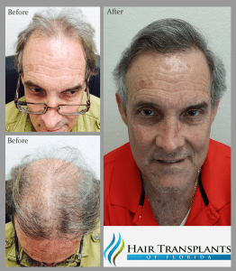 Raul before and after hair transplant Florida 1