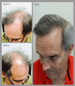 Raul Florida hair transplant before and after 2