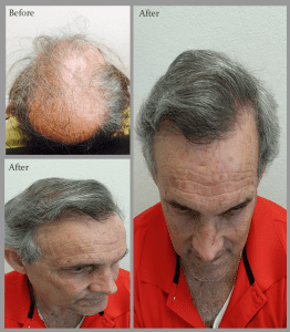 Raul hair restoration honest before and after 3