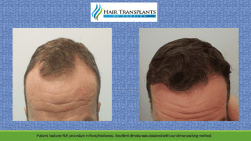 Hair Restoration Before After Photos